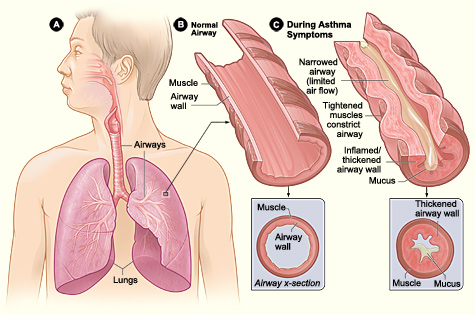 How asthma develops. Credit: National Heart, Lung, and Blood Institute, National Institutes of Health.